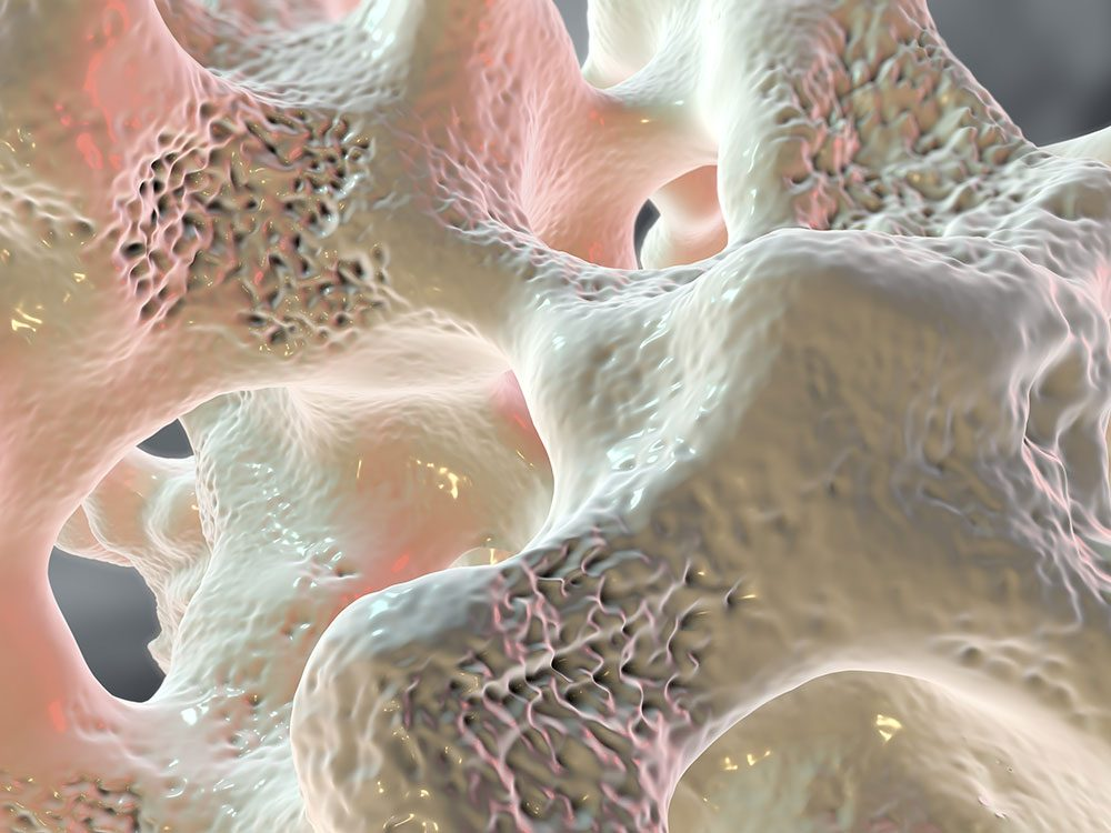 Types of arthritis: Osteoporosis