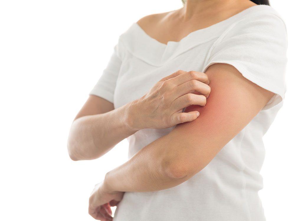 Types of arthritis: Psoriatic arthritis