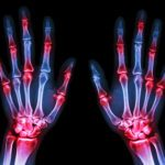 10 Types of Arthritis You Could Have—and How to Tell the Difference
