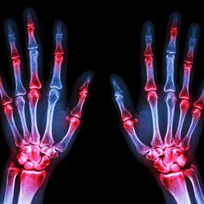 Types of arthritis: Rheumatoid arthritis