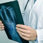 11 Diseases Doctors Are Most Likely to Miss