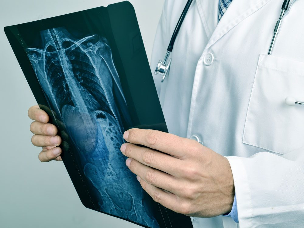 diseases-doctors-are-most-likely-to-miss