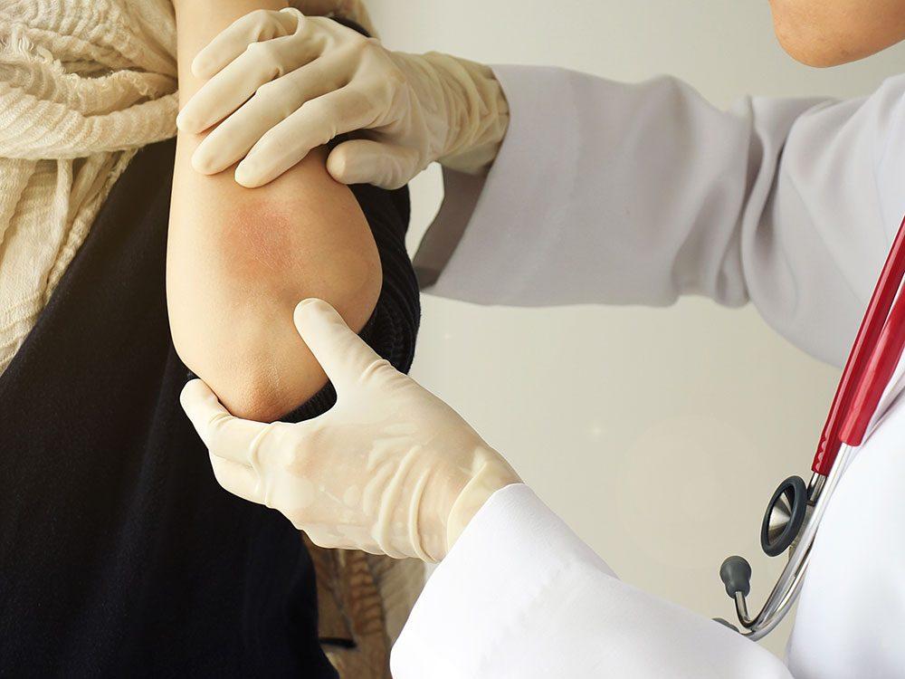 Health studies on psoriasis treatment