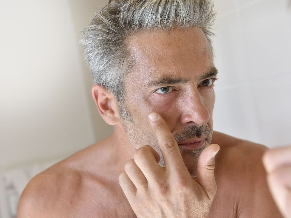 Man inspecting keloid scar tissue