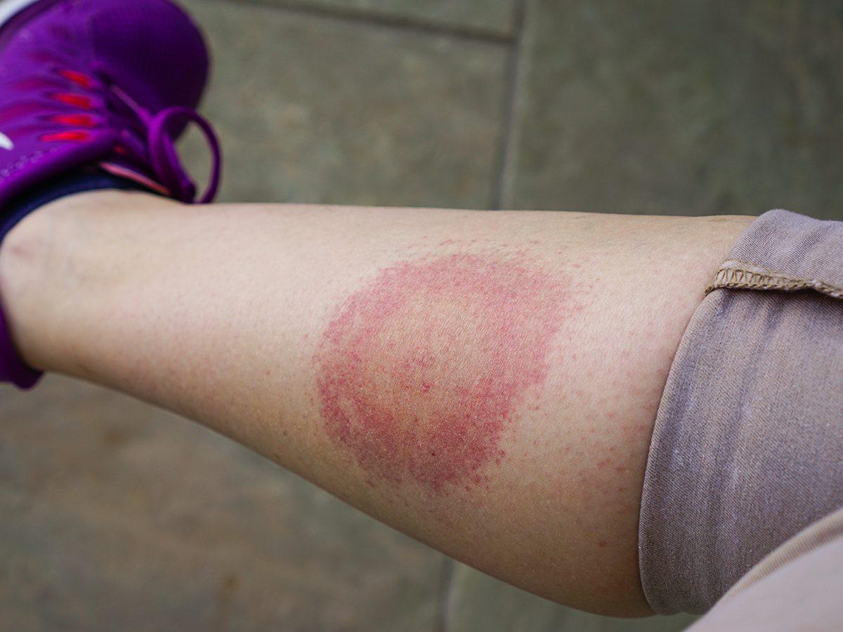 Tick borne diseases in Canada - Lyme disease bullseye rash