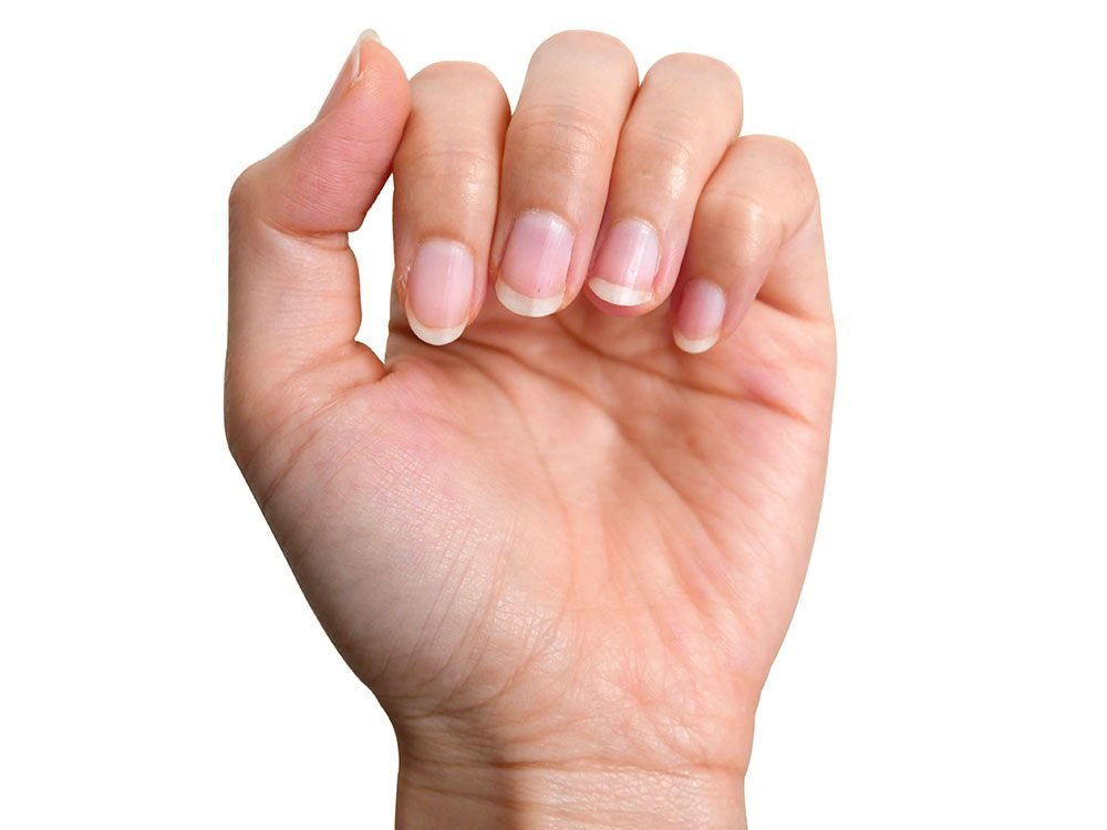 Use fingernails to measure capillary refill time