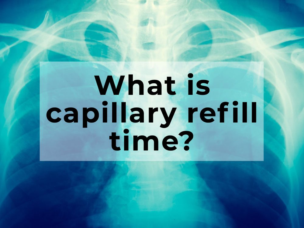 What is capillary refill time?