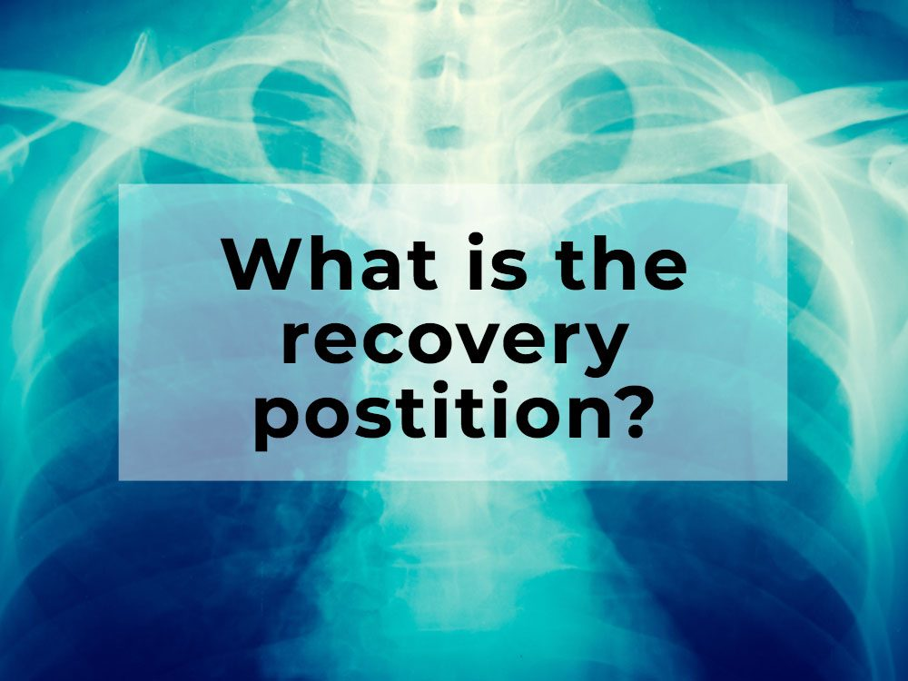 What is the recovery position used for?