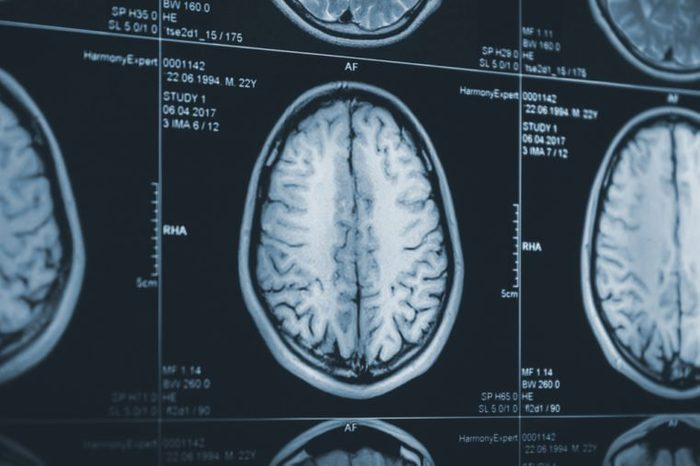 Close up of a brain CT scan. X-ray medicine research