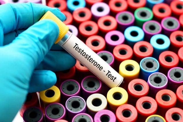 Testosterone hormone test