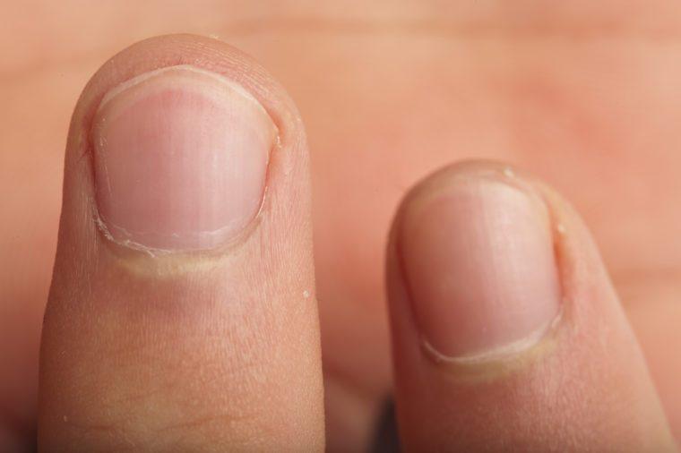 Close-up of fingernails