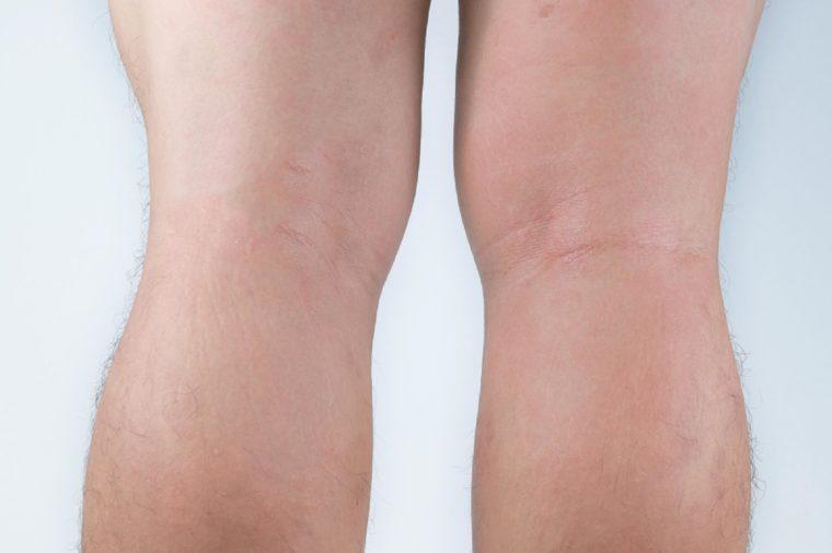 Allergic rash dermatitis eczema skin on leg of patient. Psoriasis and eczema skin with big red spots.