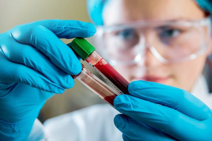 Medical equipment. Blood test