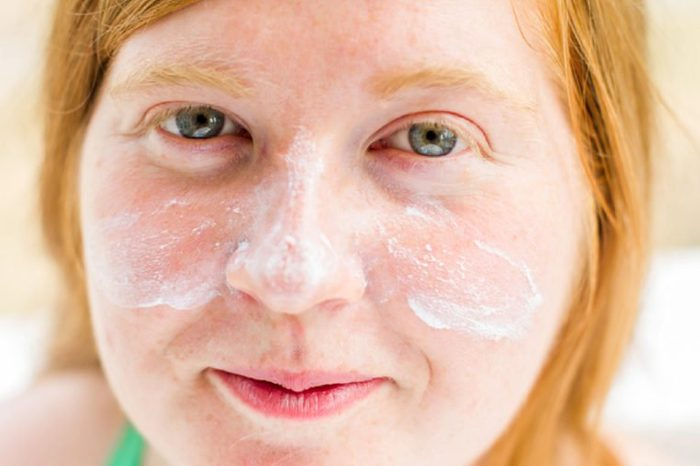 Young redheaded and freckled woman with sunscreen on her face and cheeks.