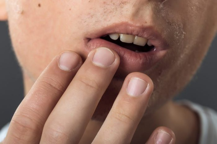 Close up portrait of man lips infected herpes virus standing on gray background virus