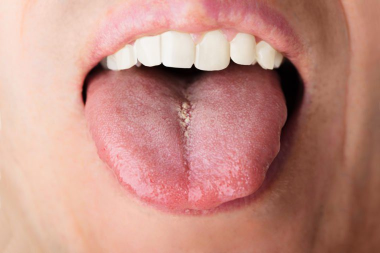 Closeup photo of man showing his tongue