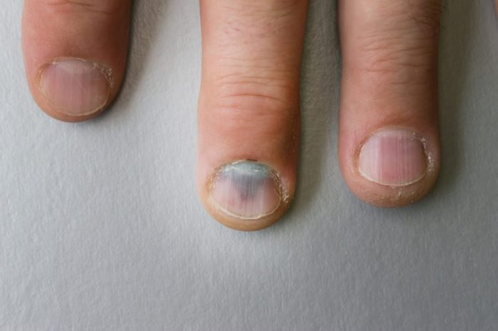 Bruised finger. A bruise on the nail.