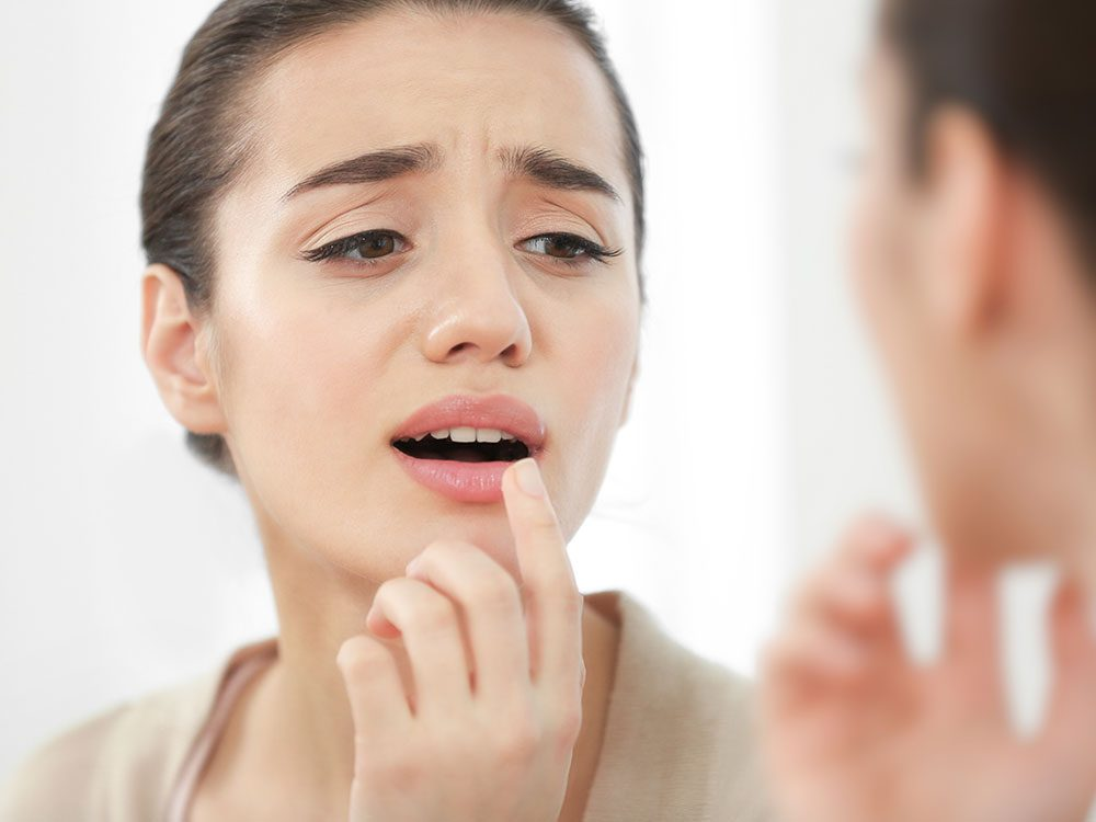 Treat canker sores with aloe vera