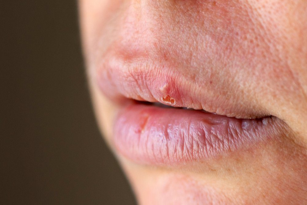 Herpes on the lip close up macro.