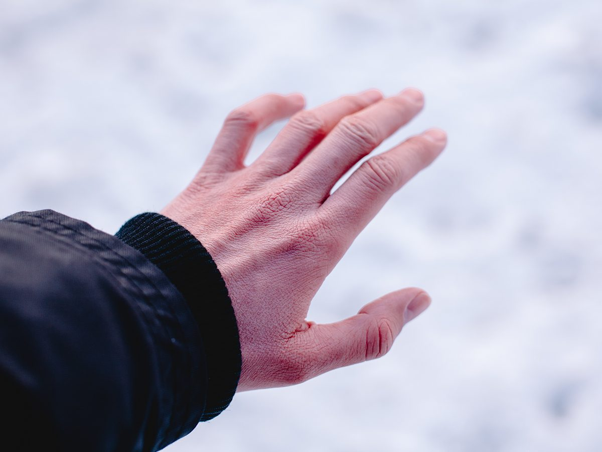 Signs of frostbite - cold hands in winter