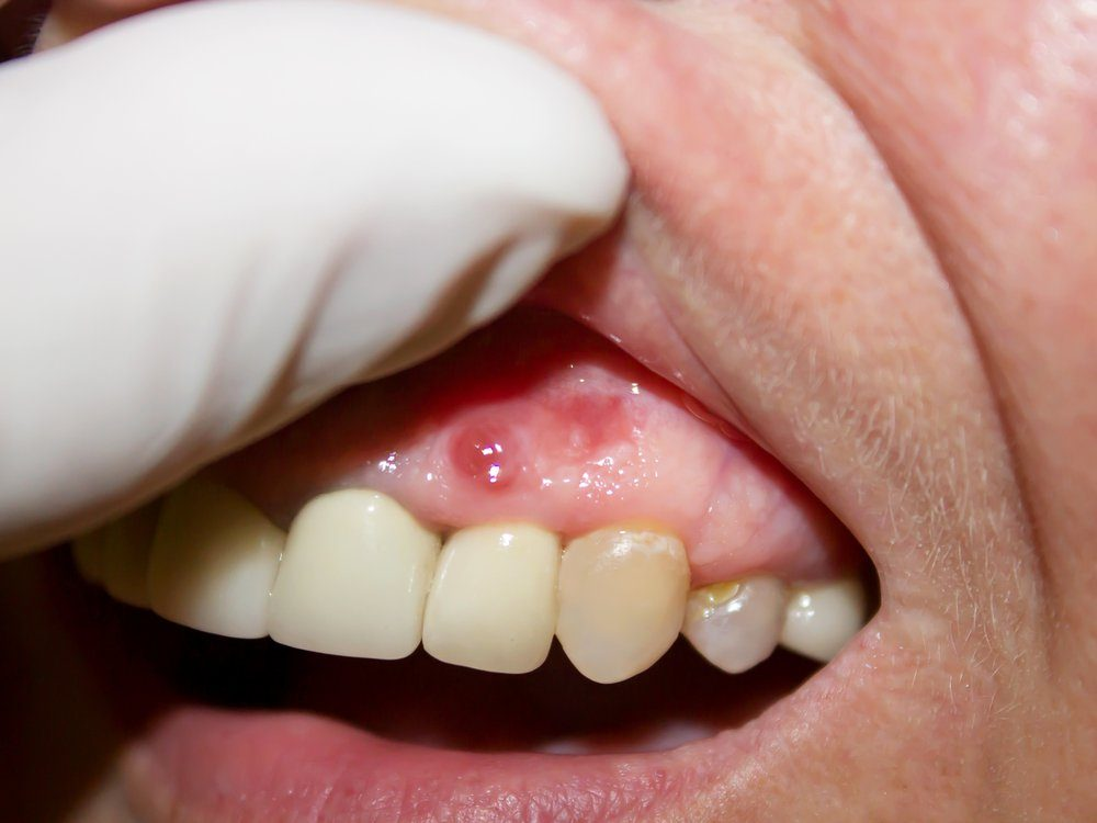 Periodontitis. Inflammatory process in the gum area. Caries, tooth enamel defect. The doctor examines the oral cavity. Preliminary examination of the dentist.