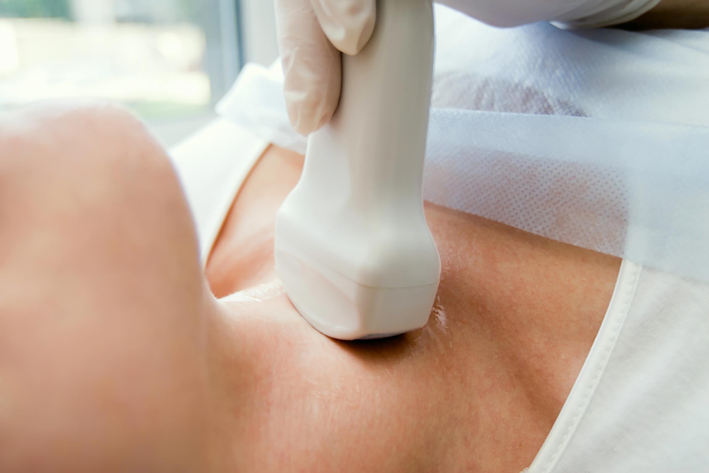 thyroidscan
