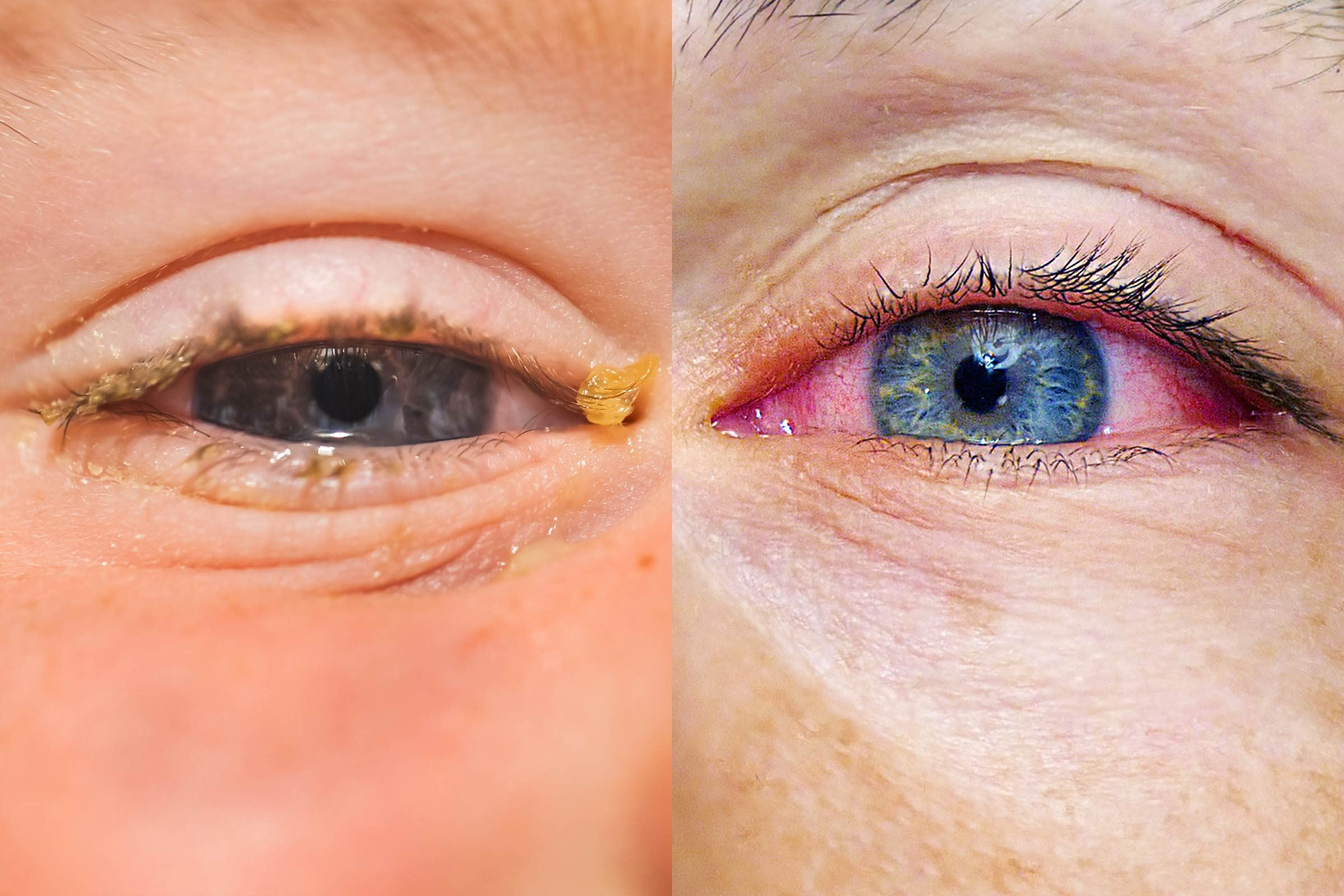 pink eye vs allergies
