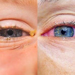 pink eye vs allergies