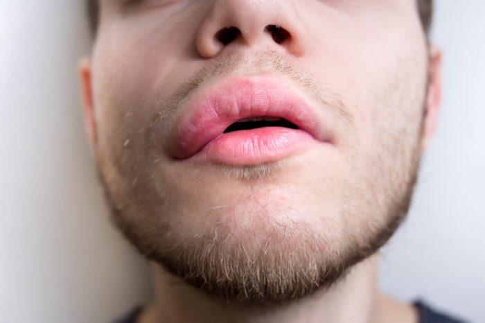 asymmetry of the face in stroke. twisted lips.
