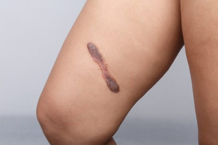 Scar on human skin, keloid on thigh