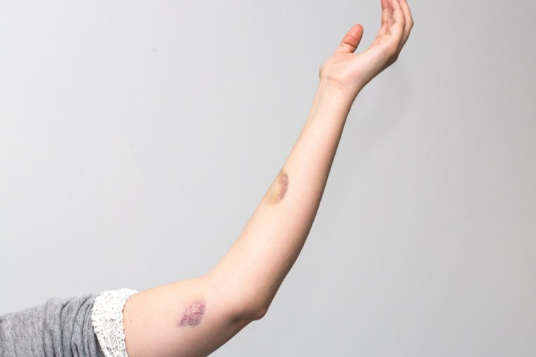 Woman violence, bruises on arm