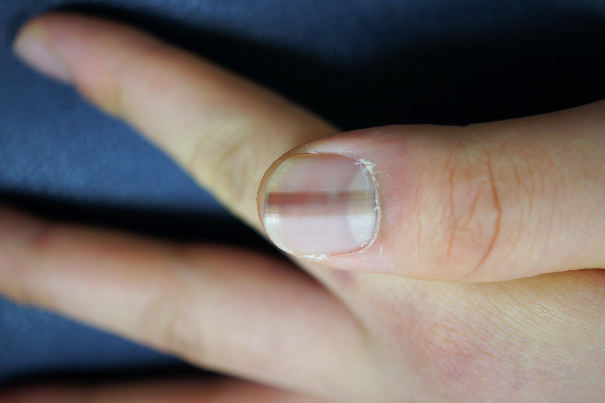line nail dark