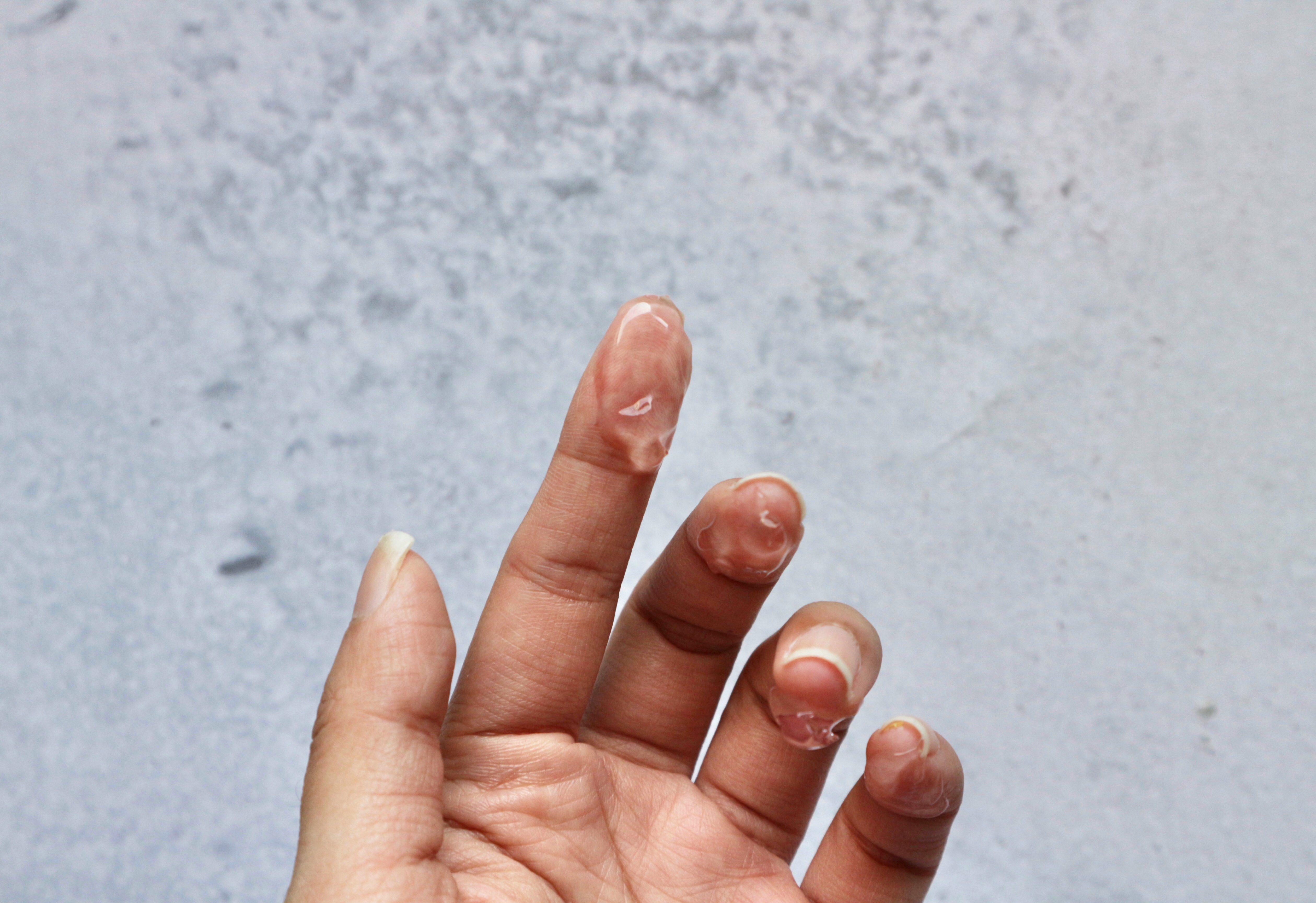 Cream gel on finger, hand in white background