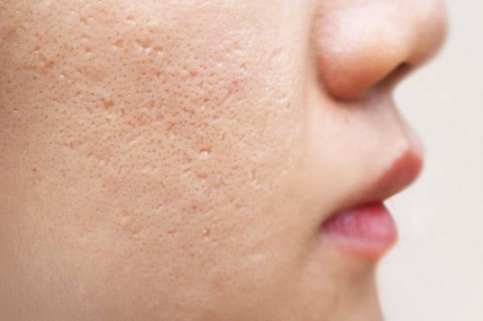 icepick scars acne on cheek on face women cause of happen because of skin loses collagen, so the overlaying skin collapses and leaves a hole, narrow and deep using for cream or skin care product conce