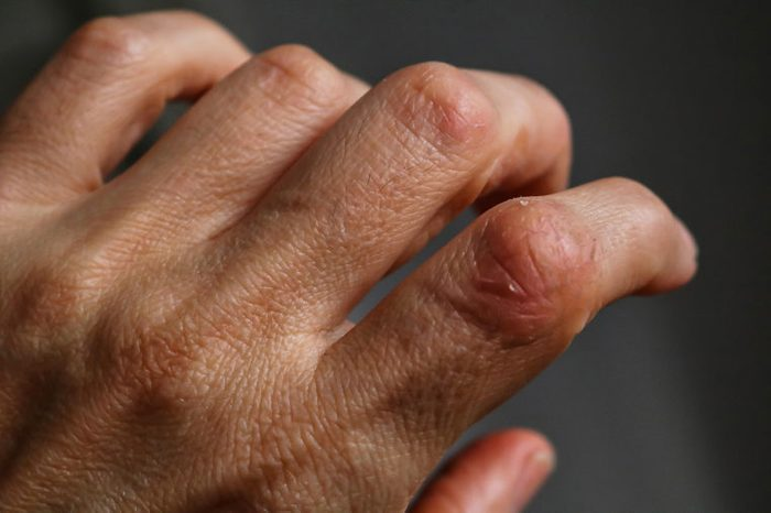 Psoriasis. A close view of skin affected by psoriasis on hands. Psoriasis patches on fingers and knuckles.