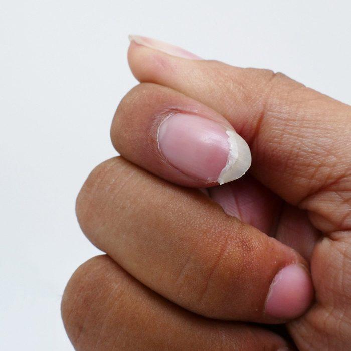 Fix a fingernail
