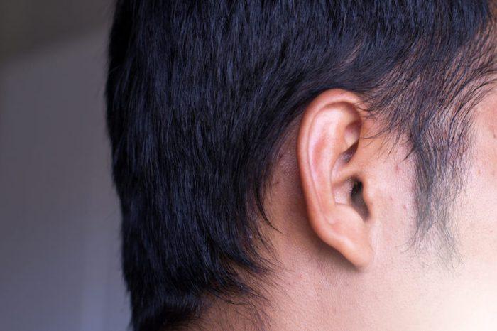 Earwax in ear close up,Healthcare concept,Selective focus