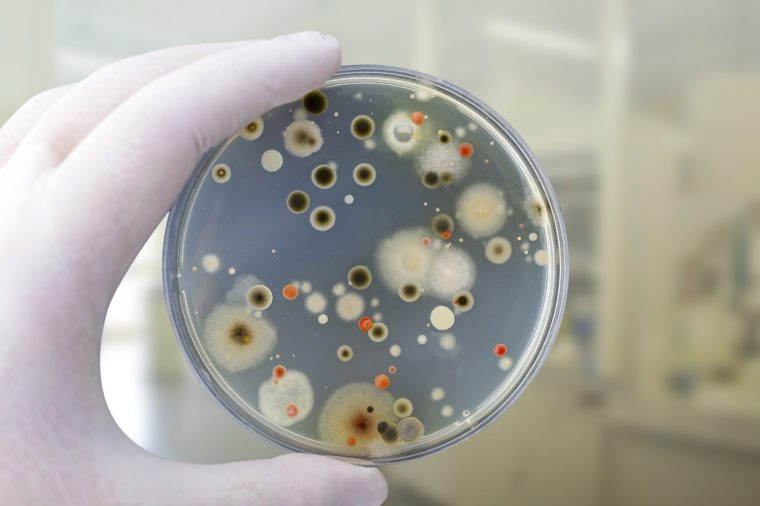 Colonies of different bacteria and mold fungi grown on Petri dish with nutrient agar, close-up view. Hand in white glove holding plate with nutrient medium in research laboratory