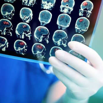 life after stroke brain scans