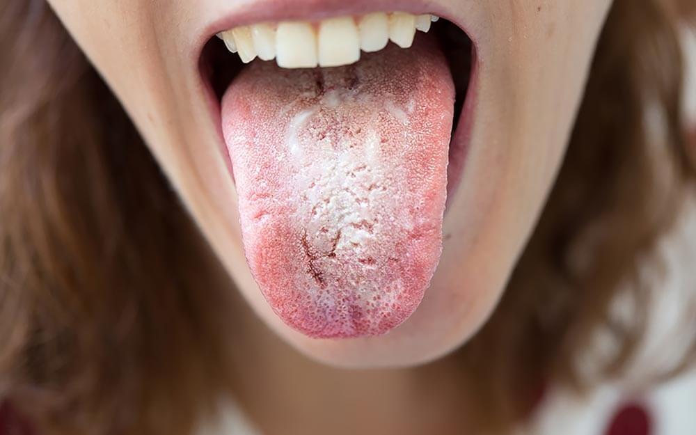 Thrush tongue