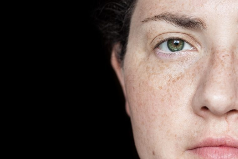 Closeup Portrait of Woman with Freckles and Green Eyes Isolated on a Black Background: Half of Face Visible on Right Side of Frame.