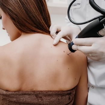 9 Myths About Skin Tags You Need to Stop Believing