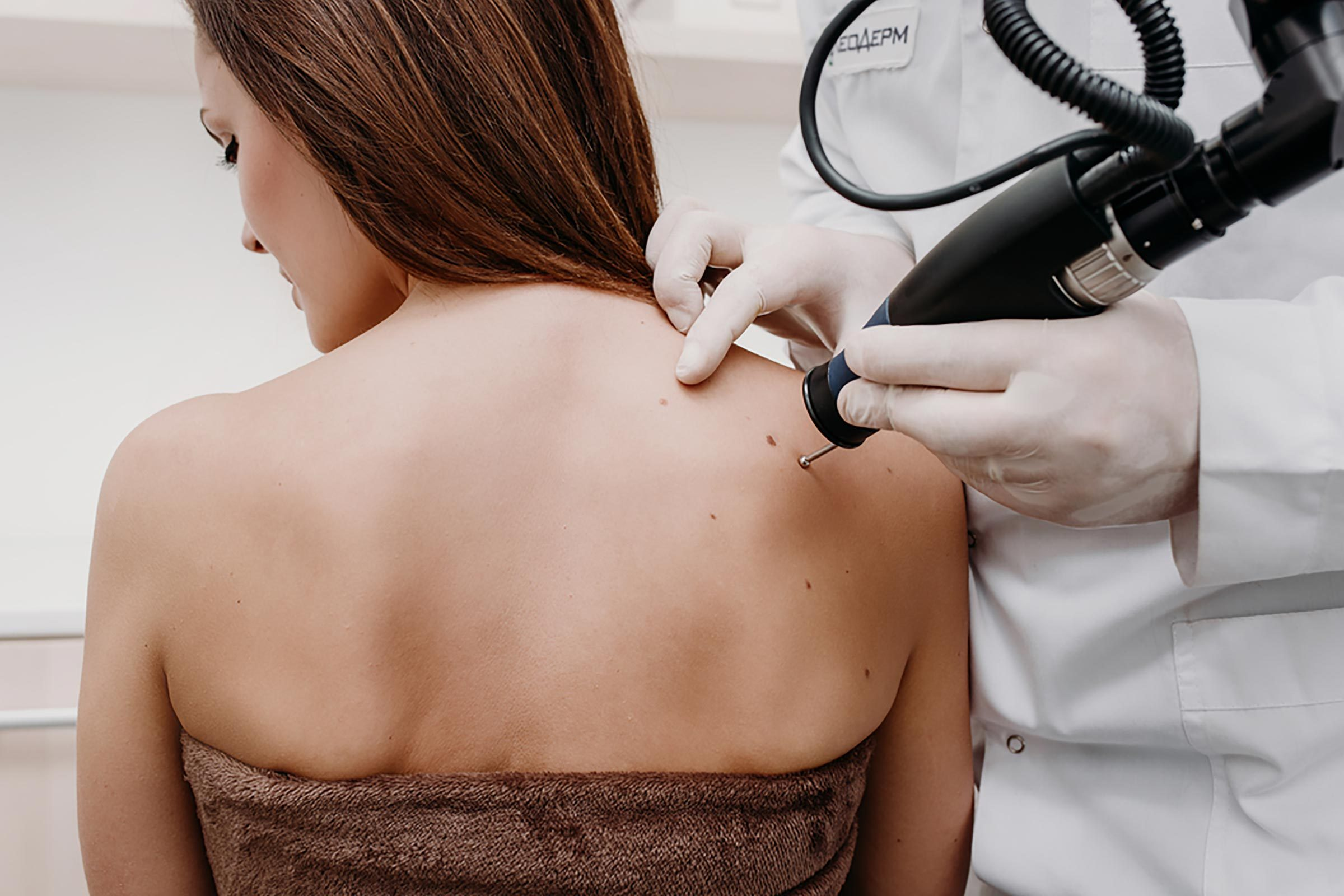 Removing skin tags