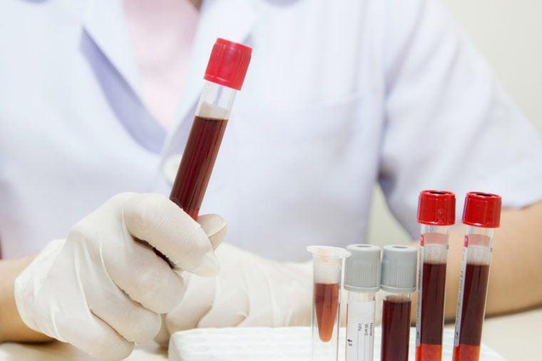 Blood in vial