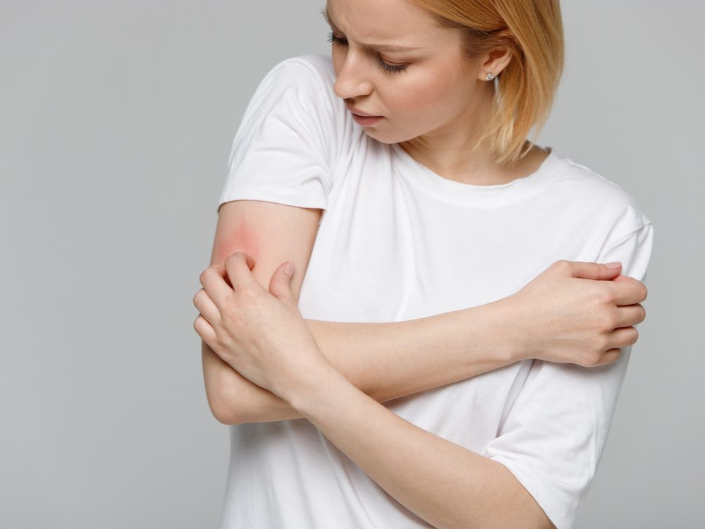 Woman scratching itch on arm