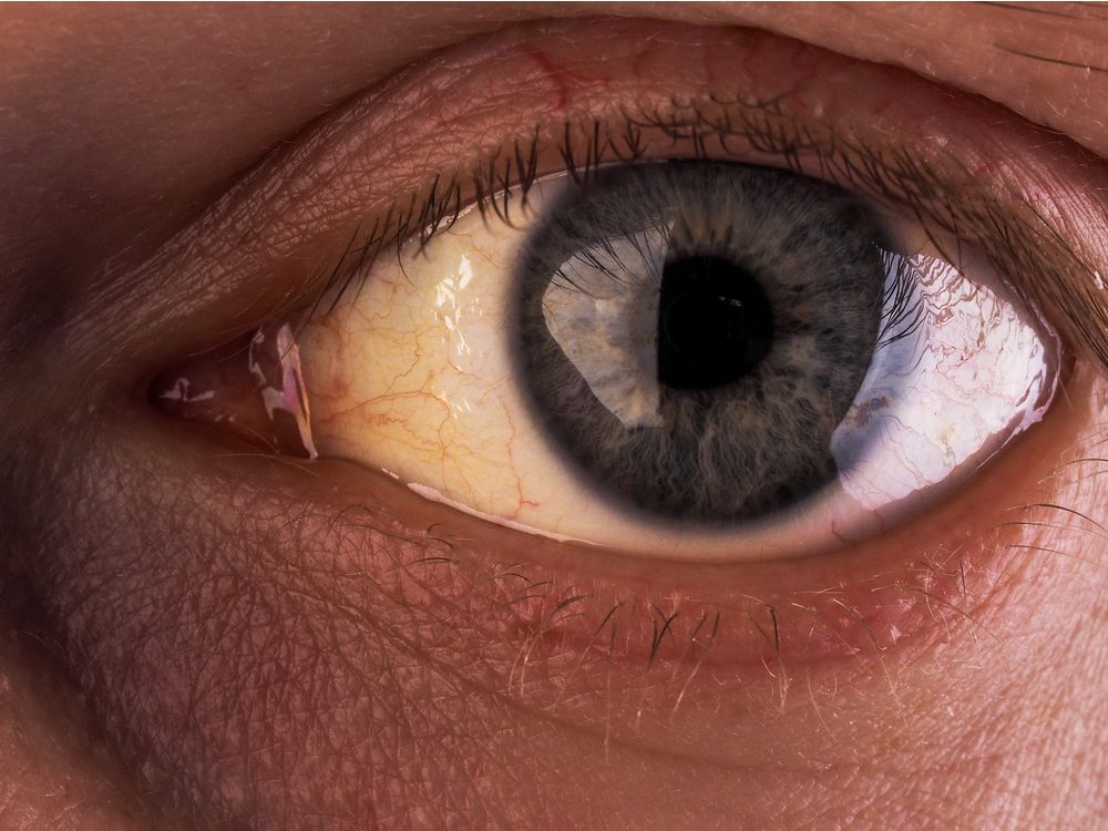 Eyes affected by jaundice