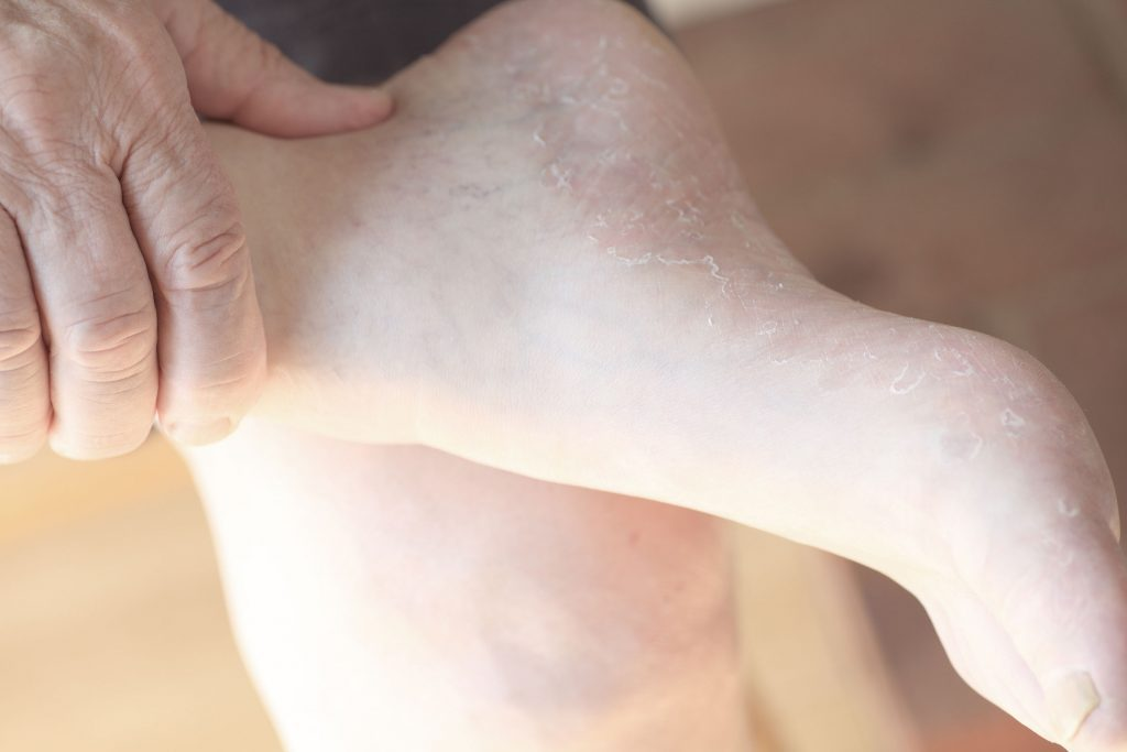 bare feet with dry skin