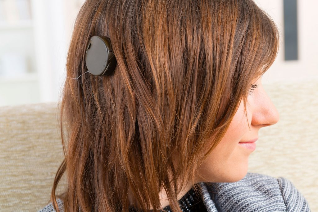 woman with cochlear implant