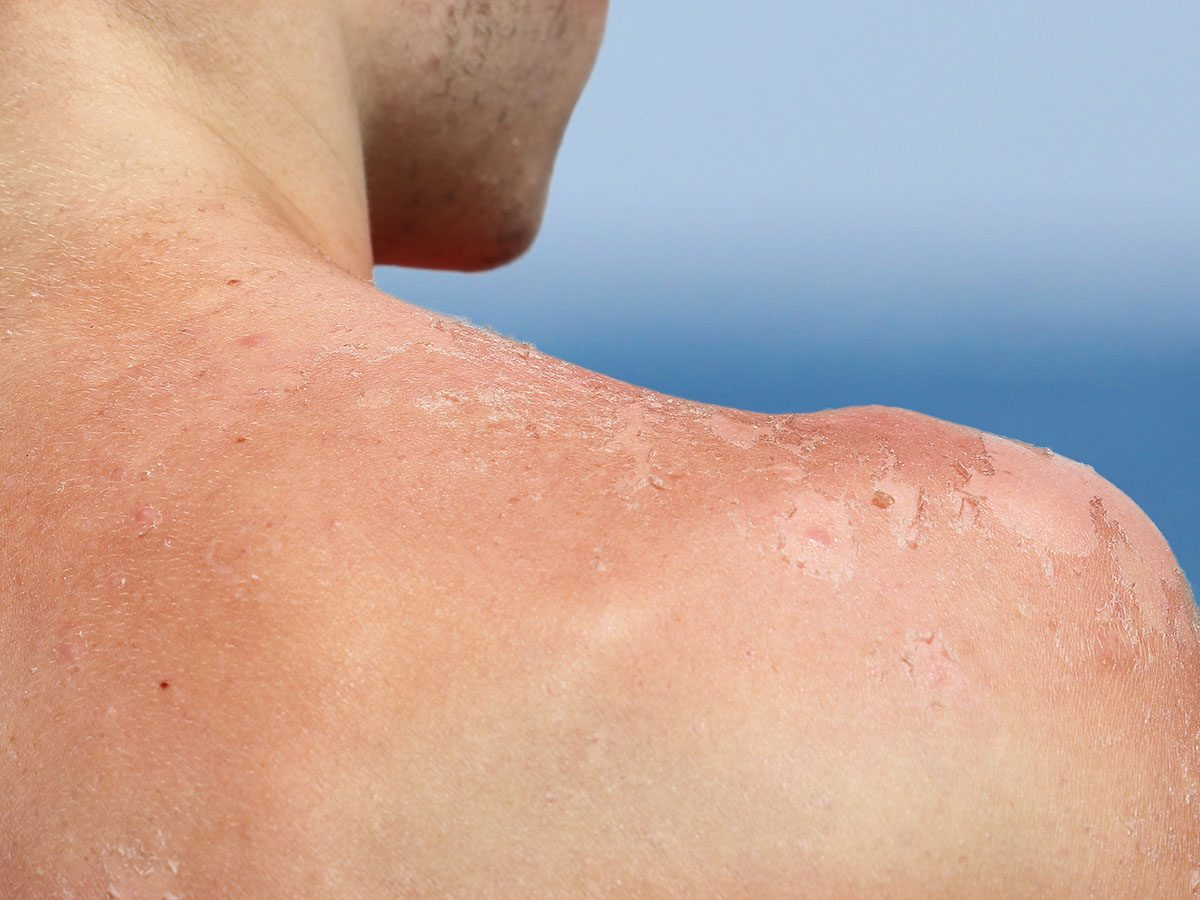 Man with sunburnt back.