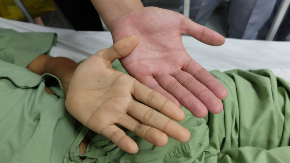 Jaundice , yellowish discoloration of skin and sclera. Comparing normal and diseased hand.